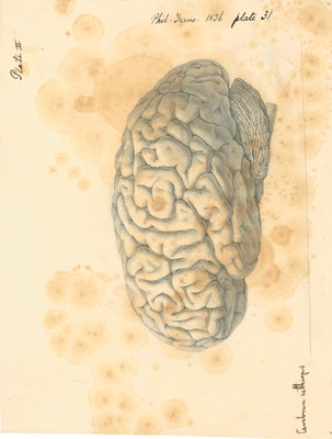 Side view of the brain of a male Negro, aet. 25