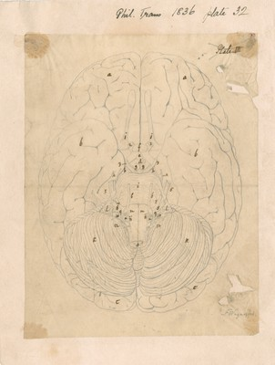 Base of the brain of a male Negro, aet. 25.